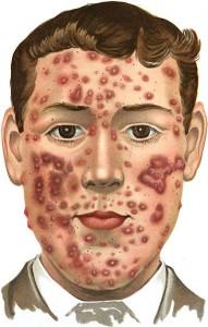 Acne-severe